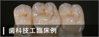 歯科技工臨床例